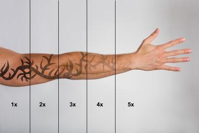 braccio di uomo con tatuaggio oggetto di rimozione laser